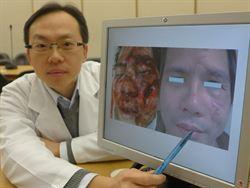 被撞臉變形 骨頭復位術獲重生