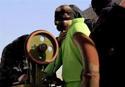 伊朗潑酸男子 被判挖眼、割耳鼻