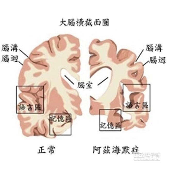 阿茲海默症病患的大腦和正常人明顯不同。(圖取自科技大觀園網站)