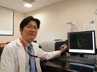 螢光顯影  提高淋巴結廓清率