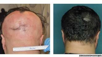治療骨髓藥 讓禿頂長出一頭秀髮