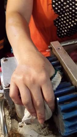 豬肉女攤販 手指遭切肉機夾斷