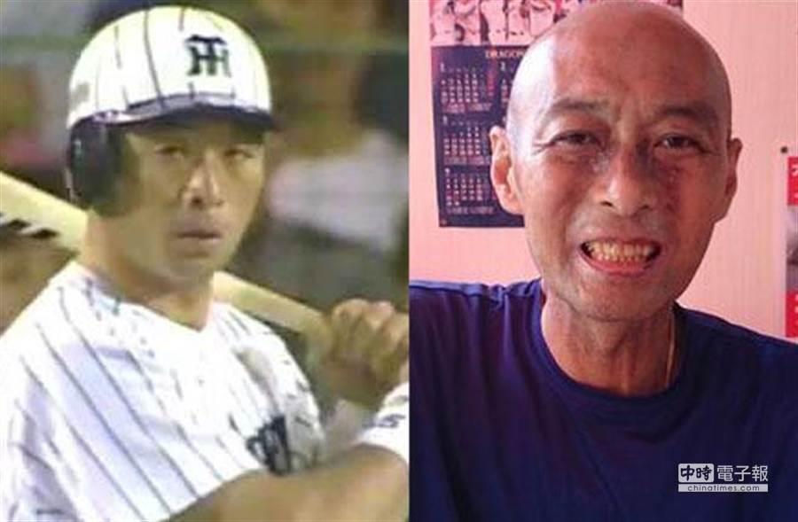 旅日球員陳大豐(右圖為罹病後所攝)過世,享年51歲。(圖摘自網路)