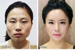 韓國人愛整形 源自戰爭?