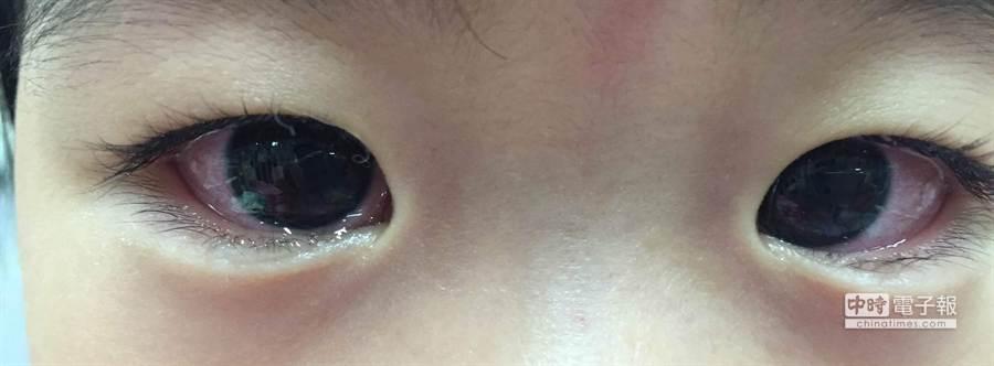 黃小妹雙眼也紅咚咚,結膜充血。(張妍溱翻攝)