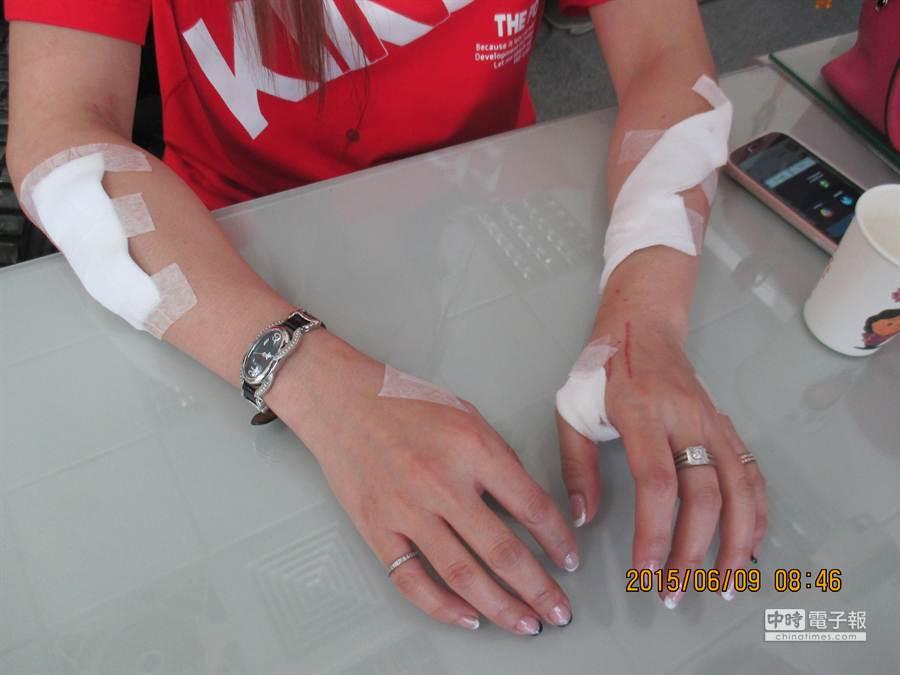 林女謊稱遭歹徒性侵未遂,掙脫時被美工刀劃傷,雙手手掌及手臂滿布刀傷。(張妍溱翻攝)