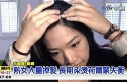 熟女大量掉髮 長期染燙荷爾蒙失衡