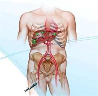 癌症療法新契機 提升5成病人存活率