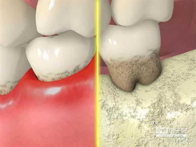 一般牙周病治療效果不彰時,牙醫師常常會說是因為患者清潔口腔不夠仔細所致,把復發的肇因歸咎於口腔細菌。因為細菌無所不在,所以牙周病的治療總是成效不佳。可是明明患者已非常認真清潔牙齒,要硬說是清潔不夠,實在令人講得非常心虛。圖片提供:健康365