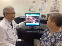 溶栓無效 微導管動脈取栓術救命