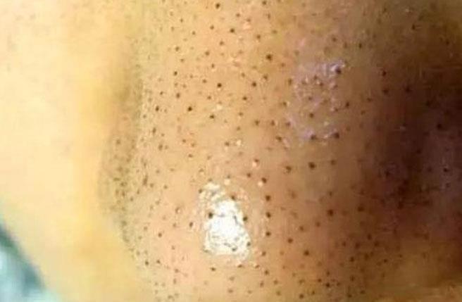 黑頭粉刺和白頭粉刺好發於鼻子、額頭和兩頰,這兩種粉刺最容易使毛孔變粗大。(圖/晉中信息港)