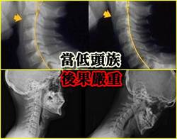 低頭族當心 7歲童頸骨彎曲