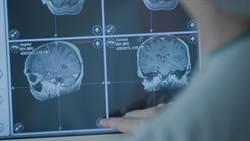 國家地理頻道26日上午 直播美國開腦手術
