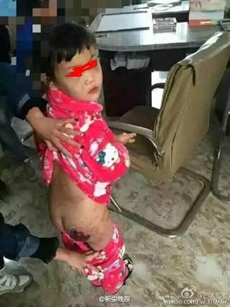 陸6歲女童被親媽傷口撒鹽 雙手燙開水全身傷
