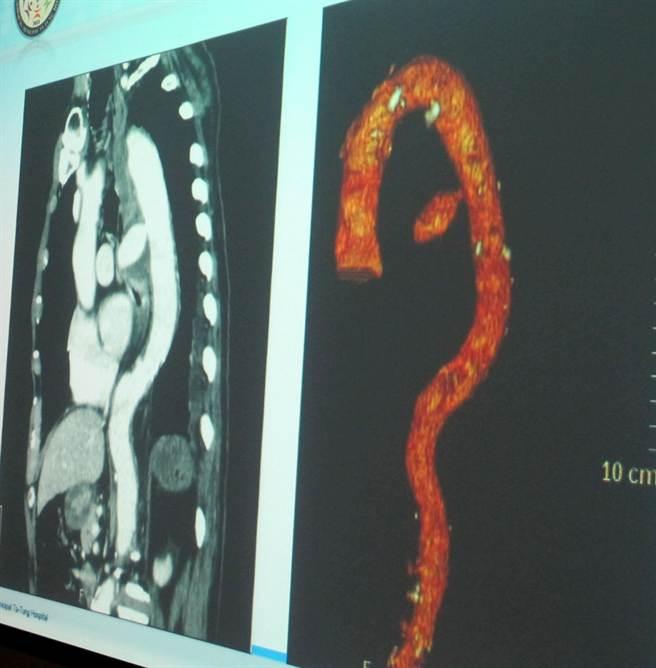 70歲老翁魚刺刺穿食道,傷及主動脈產生動脈瘤(右凸出物)大出血而回天乏術。(呂素麗翻攝)