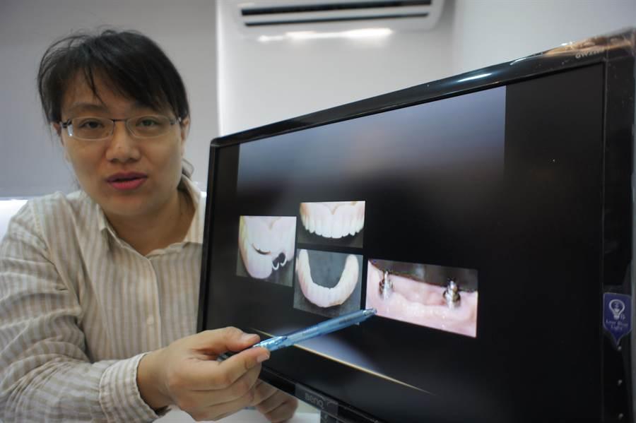 超值牙醫診所院長吳立琳解釋是透過兩顆牙橋做固定,就幫50歲張小姐做了經濟又實用的全口假牙。(馮惠宜攝)