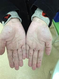暖冬效應 童綜合腸病毒患者增一成多