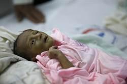 中東父母餵孩子安眠藥 忘卻飢餓痛苦