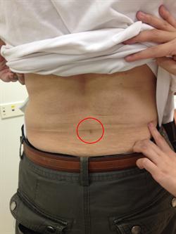 染流感 開業醫師咳到椎間盤破裂突出
