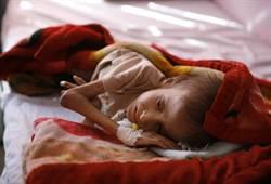 戰火悲歌 葉門每六個小孩就有一人死或重殘