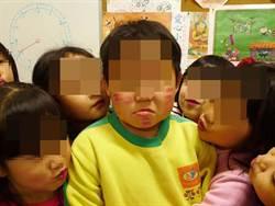 彰化幼兒園恐違《兒少法》可處6萬以上罰鍰