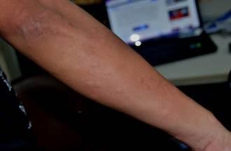 濕熱氣候  台東小黑蚊大爆發