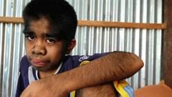 印尼少年全身毛被當狼人 他卻不難過原因是?