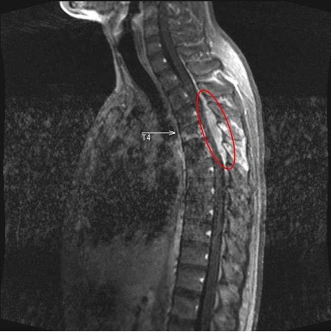 核磁共振影像顯示腫瘤位於胸椎第4、5節處(紅圈處)。(徐養齡翻攝)