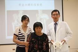 安南醫院骨科結合3D列印 有效降低風險