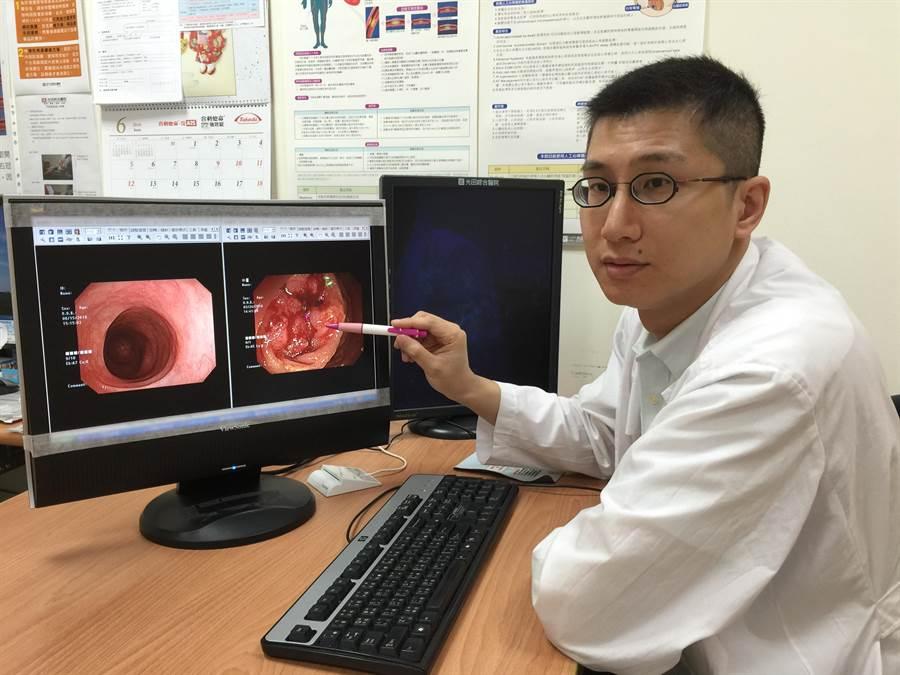 光田肝膽腸胃科主治醫師陳泰維,解說正常大腸(左)與大腸癌(右)的不同。(陳淑娥攝)