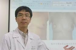 乳癌年輕化  乳房重建手術重要性增