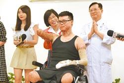 國際視為生命奇蹟 黃博煒:想趕快賺錢 塵爆奪雙腳右手「我還有頭腦」