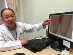 粗大腿摩擦引皮膚病  顯微抽脂擺脫困擾