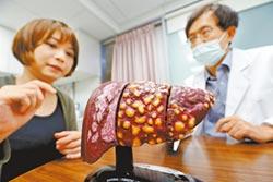 全台慢性患者約55萬人 C肝新藥 明年納健保