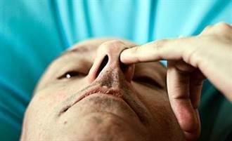 從鼻子中挖到寶 發現超級細菌剋星