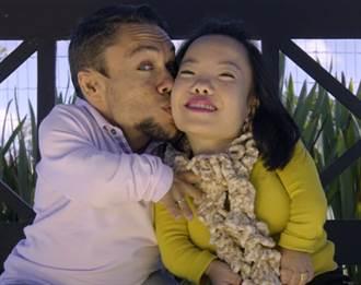 求婚成功!巴西誕生「世界最矮小夫妻」