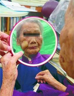 局部麻醉切除臉上大腫瘤 百歲人瑞敢照鏡子了