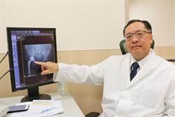 婦自創療法止痛 人工髖關節手術阻惡化