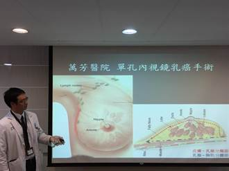 乳癌新手術 腋下1刀不影響乳暈乳頭