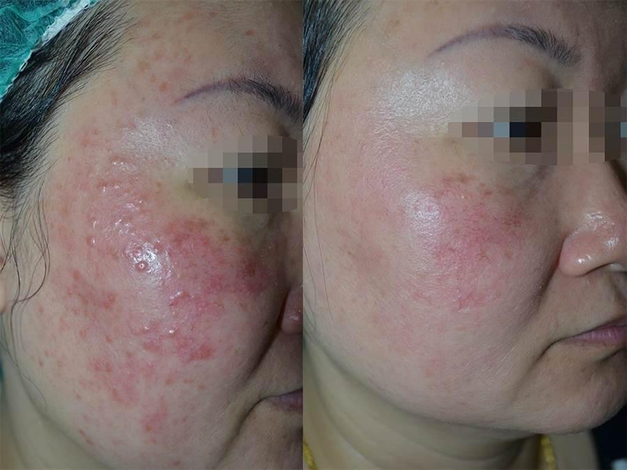 酒糟性皮膚炎症狀,圖左為改善前,圖右為改善後。(徐養齡翻攝)