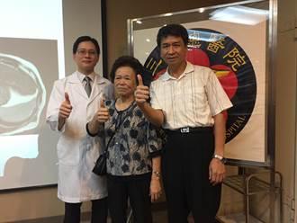 肝癌免開刀 立體定位消融放射治療保命