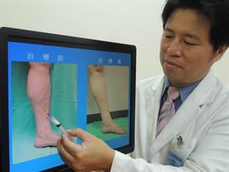 腳莫名其妙抽筋  原來是靜脈曲張引起