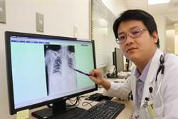 8旬翁罹沙雷菌肺炎  對症下藥脫險境