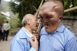 陸男患怪病 臉部增生形似E.T