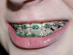 牙齒咬合不良?易連帶影響身體平衡感