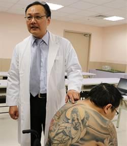 脊髓惡性星狀細胞瘤  開刀仍保背部刺青