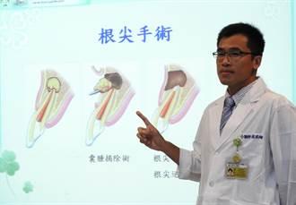 牙齦膿包別輕忽  小心根尖囊腫