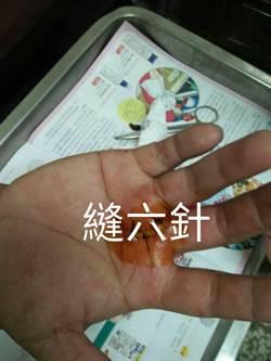 丟碎玻璃不包好 害清潔隊員鮮血直流縫6針