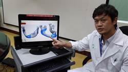 台大雲林分院3D列印下顎骨 對稱幾近完美