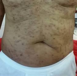 皮膚奇癢難耐 原來是腎臟病作祟